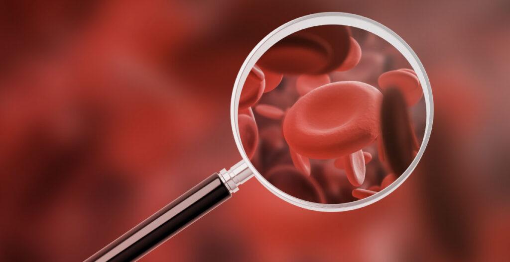 Análisis de biomarcadores en sangre: la manera correcta de evaluar la exposición a las micotoxinas